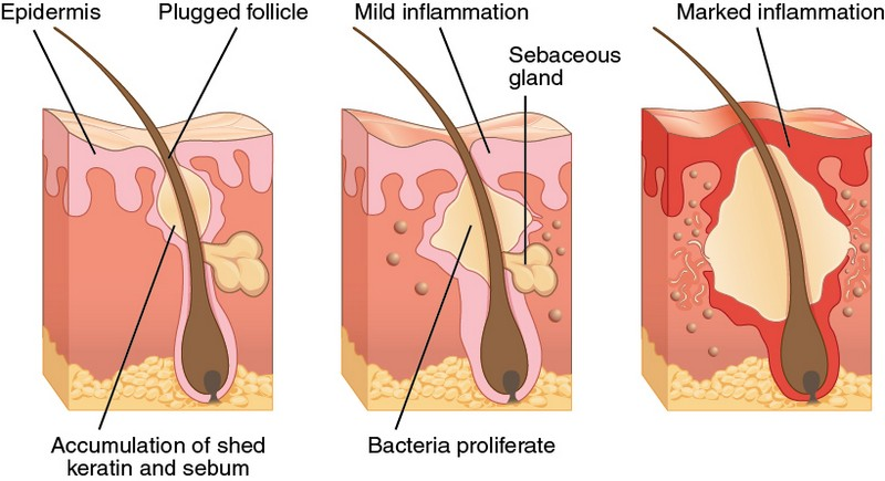 pimples are caused by inflammation of skin due to plugged follicle