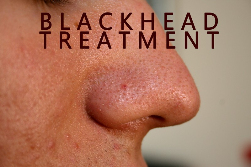 blackhead treatment