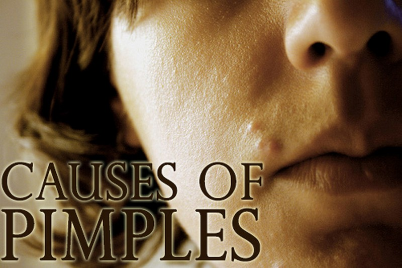 causes of pimples