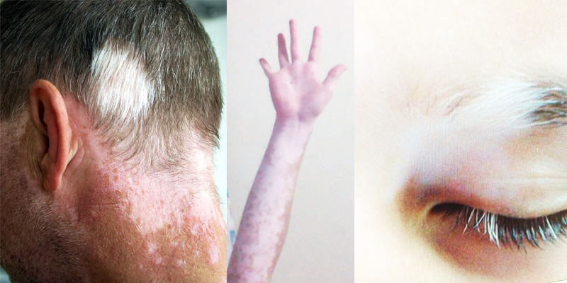 vitiligo effected people